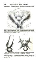 Pagina 474